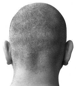 bald-head-1-574667-m